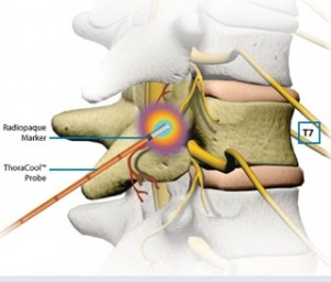 Cervical Radiofrequency Ablation