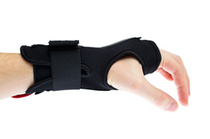 Carpal Tunnel Syndrome San Diego