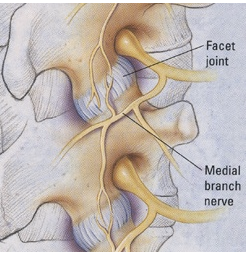 Medial Branch Nerve Block