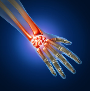 Carpal Tunnel Treatment San Diego
