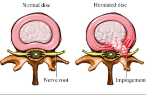 Herniated Disc San Diego