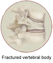 Vertical Compression Fracture Treatment San Diego