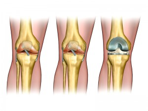 Orthopedic Surgeon San Diego