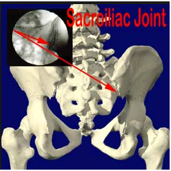 Sacroiliac Joint Injections San Diego